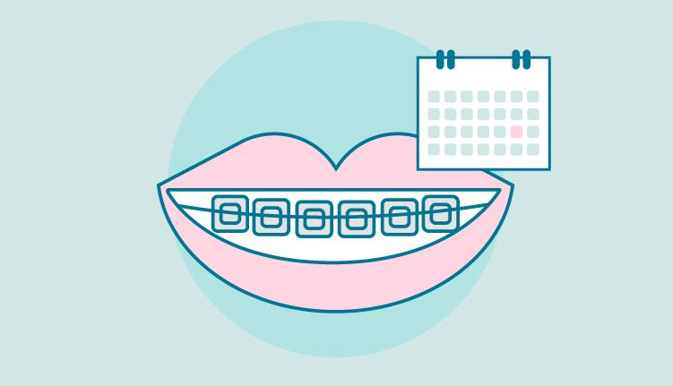 cuanto-tiempo-llevar-ortodoncia
