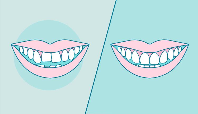 dientes-apiñados-antes-y-despues