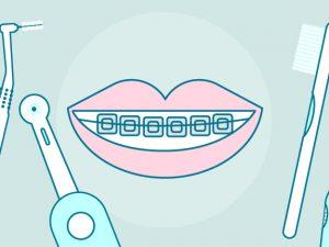 Ortodoncia: Qué tipo de cepillo y pasta utilizar para tus dientes