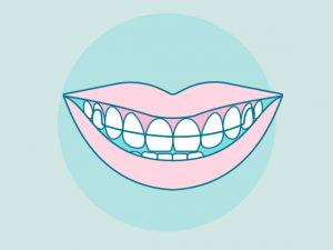 Retenedores para ortodoncia: fijos, removibles, precios y cuidados.