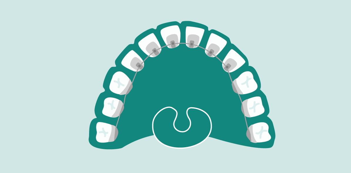 ortodoncia-lingual-madrid