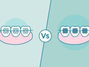 Cómo elegir tus brackets: metálicos o estéticos