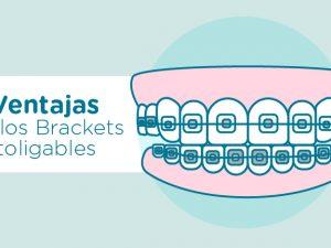 Qué son los brackets autoligables estéticos y en qué se diferencian