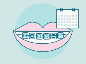 Cuánto tiempo hay que llevar una ortodoncia