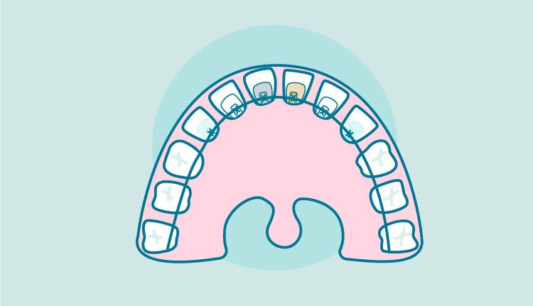 tipos-ortodoncia-lingual