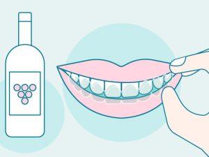 ¿Puedo beber alcohol con ortodoncia Invisalign?