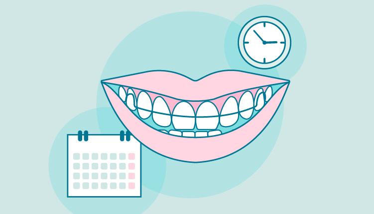 Retenedores ortodoncia tiempo
