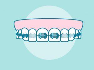 Cera para ortodoncia: Usos y consejos. ¡Cuida tus brackets!