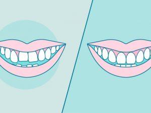 Ortodoncia antes y después: Descubre cómo mejorará tu sonrisa