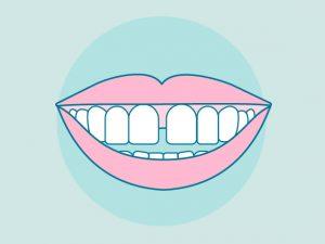 Diastema dental: Causas y cómo corregirlo