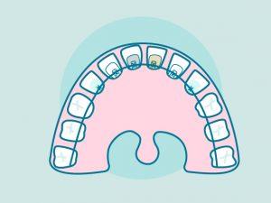 Brackets linguales, la ortodoncia más estética