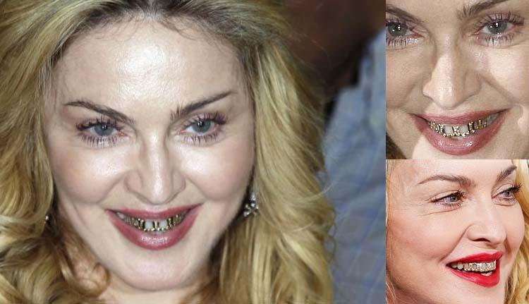 10 famosos que llevan o han llevado brackets sv medical - Como alinear los dientes en casa sin brackets ...
