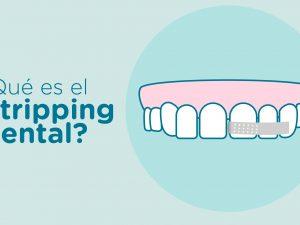 Stripping dental: Qué es y para qué se utiliza esta técnica