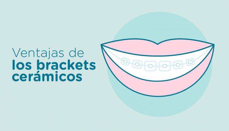 brackets-ceramicos