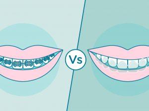 ¿Ortodoncia removible u ortodoncia fija?