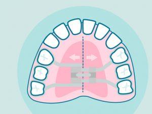 Expansor de paladar o disyuntor dental: Lo que necesitas saber